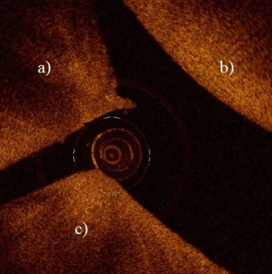 Application of optical coherence tomography enhances reproducibility of arthroscopic evaluation of equine joints